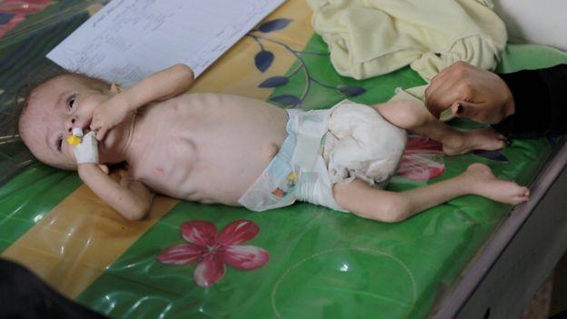 Orjowan, akut yetersiz beslenme çeken yaklaşık yarım milyon Yemenli çocuktan biri