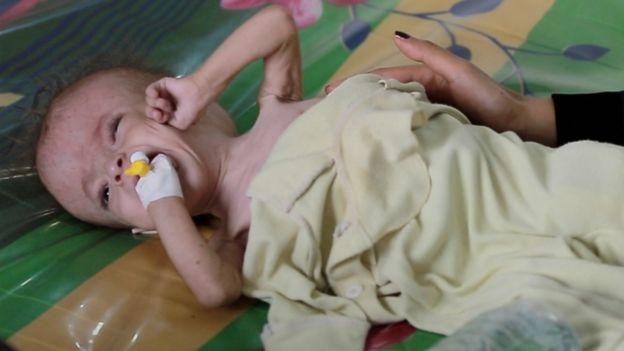 Yemen hastaneleri krizle baş etmekte zorlanıyor